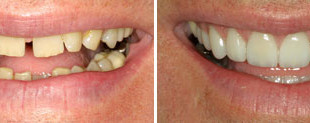 Before and after Images of a smile makeover.